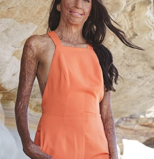 Turia Pitt - UnMasked - Offspring Magazine - Winter 2018